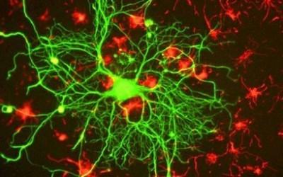пластиковые нервы