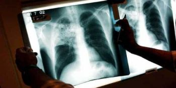 Определение туберкулеза
