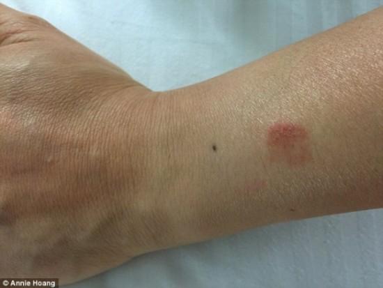 Apple Watch обожгли кожу на руке